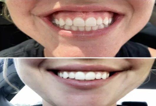 BOTOX - EFFECTIVELY TREATS GUMMY SMILE