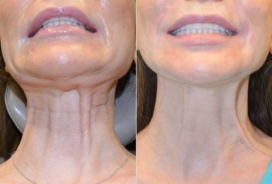 BOTOX - IMPROVES APPEARANCE OF THE NECK